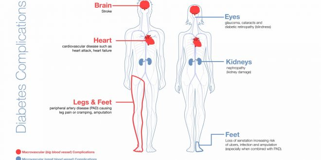 diabetes complications image