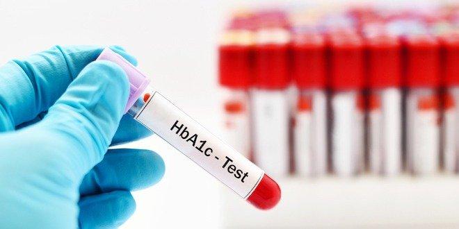 Blood sample for HbA1c test, diabetes diagnosis